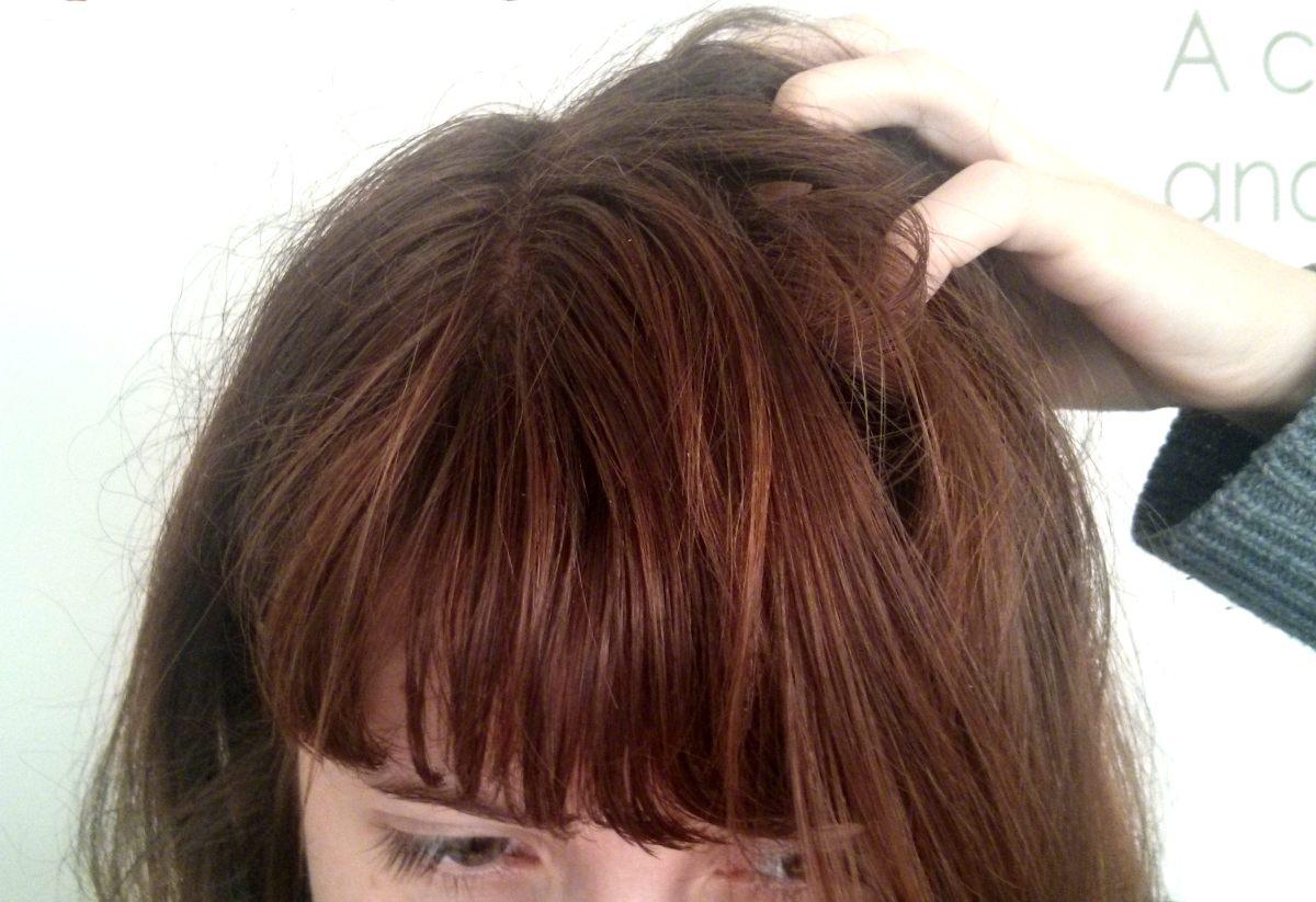 Les ampoules contre la chute des cheveux le concept la composition